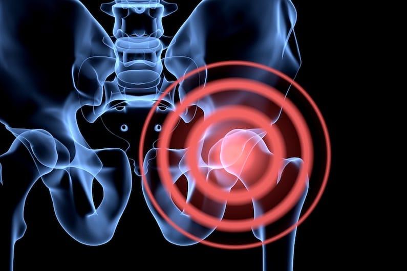 La soia riduce il rischio di osteoporosi e colesterolo